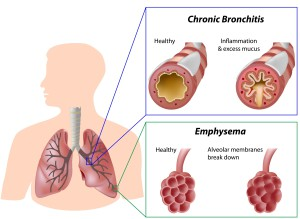 image showing COPD