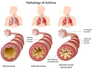 astma asthme asthma allergie allergy mnit 9