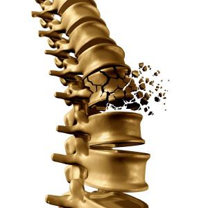 image showing osteoporose